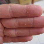 Hand snakeskin shedding